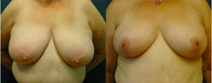 Female in her late 50s Breast Lift and Reduction