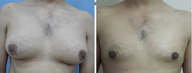 17 year young boy treated with Male Breast Reduction