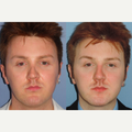 25-34 year old man treated with Revision Rhinoplasty