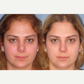 25-34 year old woman treated with Revision Rhinoplasty