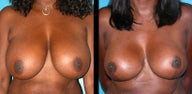 53 Year Old Woman - Breast Reduction