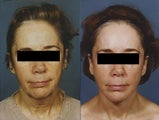 Laser Resurfacing of the face
