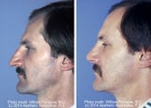 Rhinoplasty on a male side view