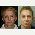 55-64 year old woman treated with Revision Rhinoplasty
