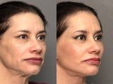 Cheek Augmentation