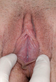 Labiaplasty (Labia Minora Reduction)