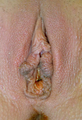 Labiaplasty (Labia Minora Reduction), Patient #11