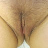 36 year old woman before and after Labiaplasty surgery