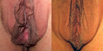 Vaginal Rejuvenation before and after photos