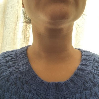 how to get rid of fat under your chin
