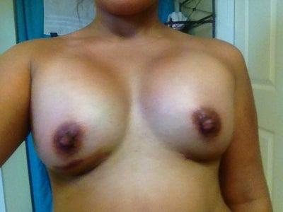 Dr. mcclintock dothan alabama breast aug