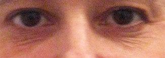 Phenol Peel Tca Peel Or Laser For Undereye Wrinkles And Crepiness Photo Doctor