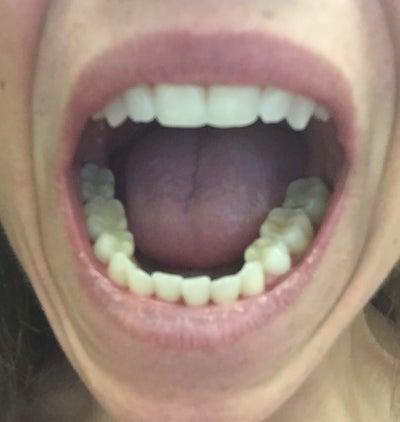 how to fix overbite teeth
