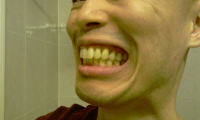 How to fix my protruding/horse looking teeth? (Photo ...