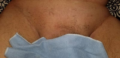 Male Brazilian Laser Hair Removal Review Realself