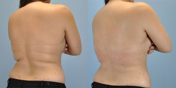 VASER Shape before and after photos