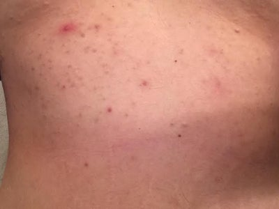 how to clear up chest acne