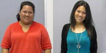 Gastric Bypass before and after photos