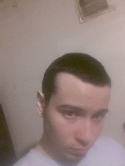 What Can I Do About My Receding Hairline
