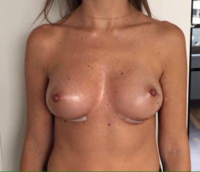 Warning Signs of Breast Cancer: Symptoms - Healthline