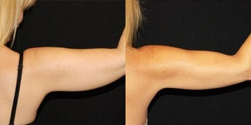 CoolSculpting before and after photos