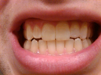 Teeth No Longer Touching After Using Invisalign Retainer ...