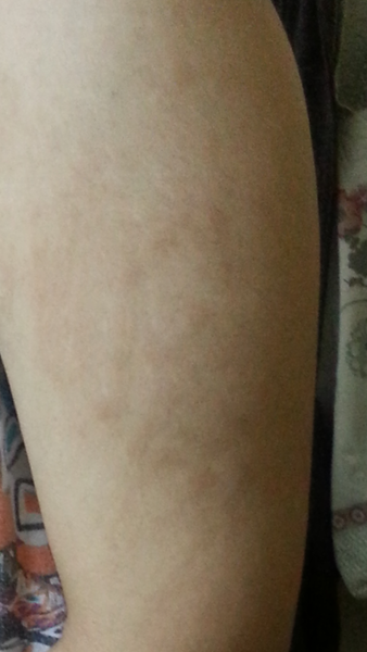 how to fix stretch marks on arms