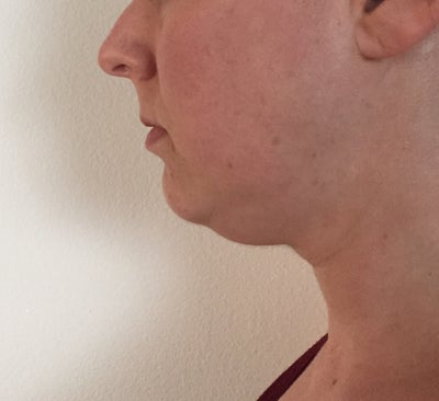 Am I A Good Candidate For Chin Liposuction? (photo) Doctor. Kidde Smoke Detector Keeps Going Off. Hybrid Water Heater Installation. Masters Of Communication Online. Washington Dc Colleges And Universities. Best Personal Injury Attorney San Diego. Supply Chain Management Presentation. Current Version Plugin Metastream 3 Plugin. East Carolina University Mba Online