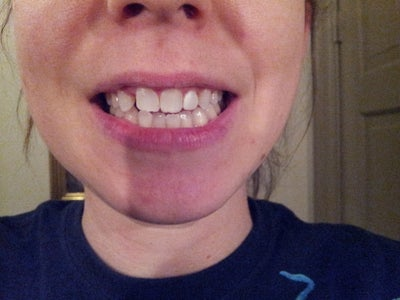 how to fix your teeth without braces
