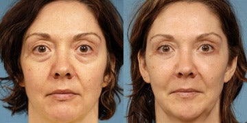 Sculptra Aesthetic before and after photos