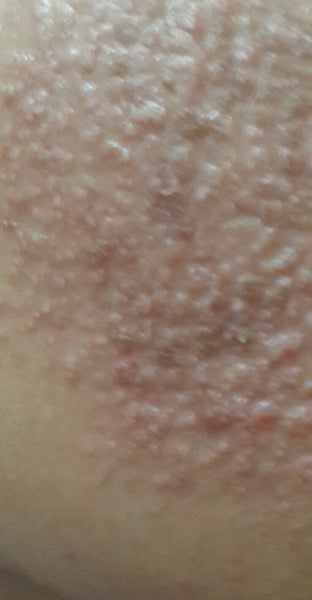 I Have Itchy Skin And Rashes After Fractional Laser Is It