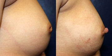 Nipple Surgery before and after photos