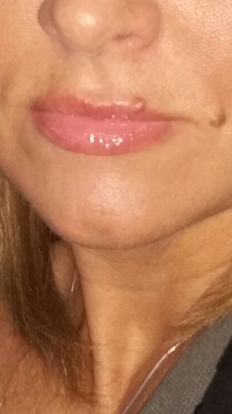 Photos de mole faciale
