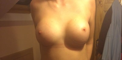 left breast swollen and sore - MedHelp