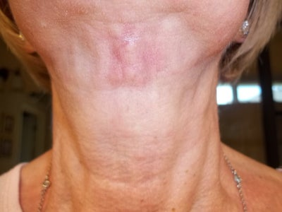 keloid steroid injection success
