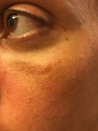 Tyndall effect and swelling under eyes after Restylane ...