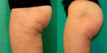 Exilis before and after photos