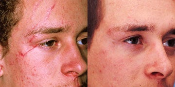 Scars Treatment before and after photos