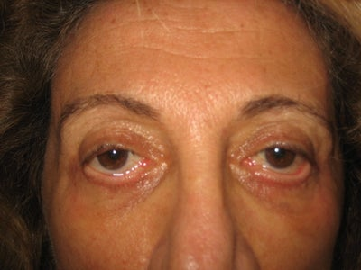 Chemosis or Ectropion After Blepharoplasty? Doctor Answers ...