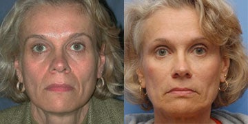 Liquid Facelift before and after photos