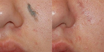 Skin Cancer before and after photos