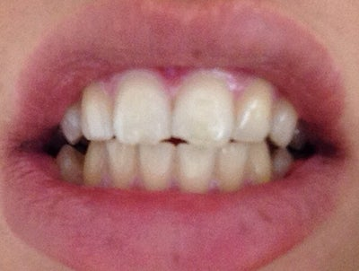 Best options for a chipped front tooth