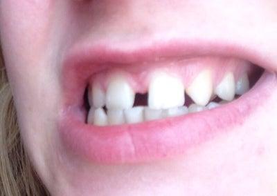 Best option to fix teeth