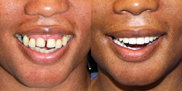 Dental Implants before and after photos