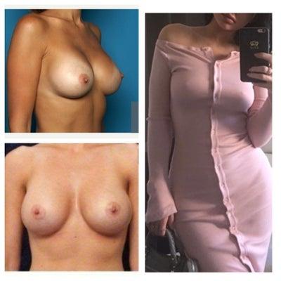 connecticut Breast Augmentation Surgeons by City