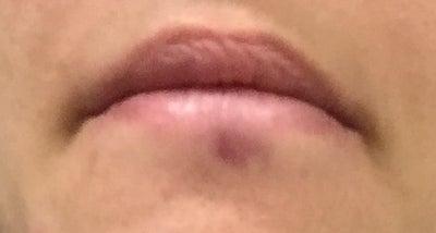Red bruising under bottom lip