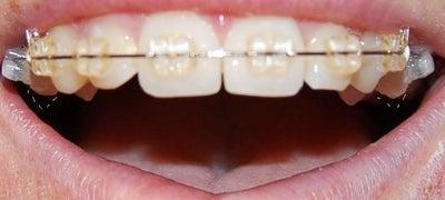 how to fix worn down teeth