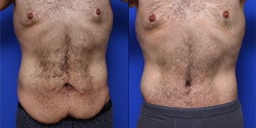 Male Tummy Tuck before and after photos