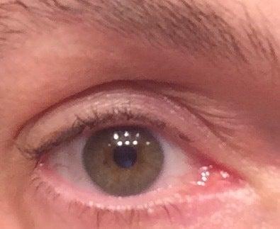 pierderea de grăsime a ochilor latisse)