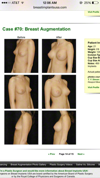 Opinions on breast implants
